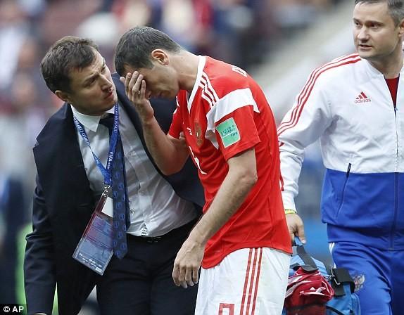 Dzagoev chấn thương và phải rời sân từ sớm