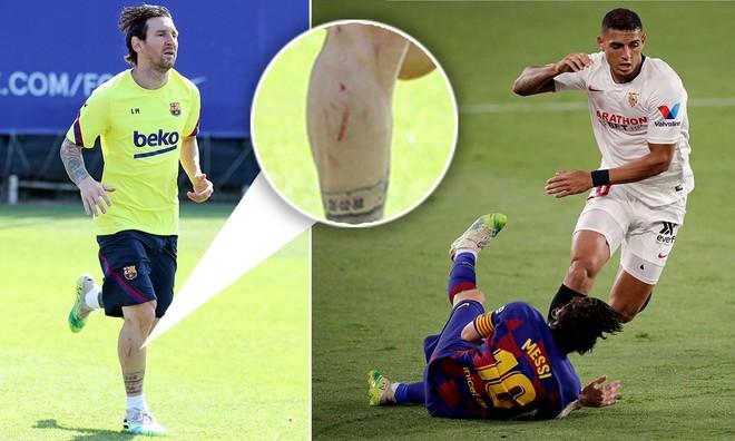 Cú vào bóng của Diego Carlos (phải) để lại vết thương dài ở chân Messi