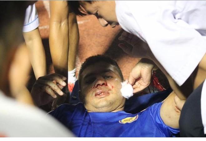 Sống mũi của Thiago biến dạng sau pha va chạm
