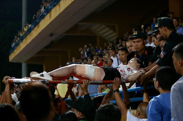 Vụ nữ CĐV trúng pháo sáng trận Nam Định - Hà Nội cho thấy công tác an ninh tại V-League chưa được đảm bảo chặt chẽ