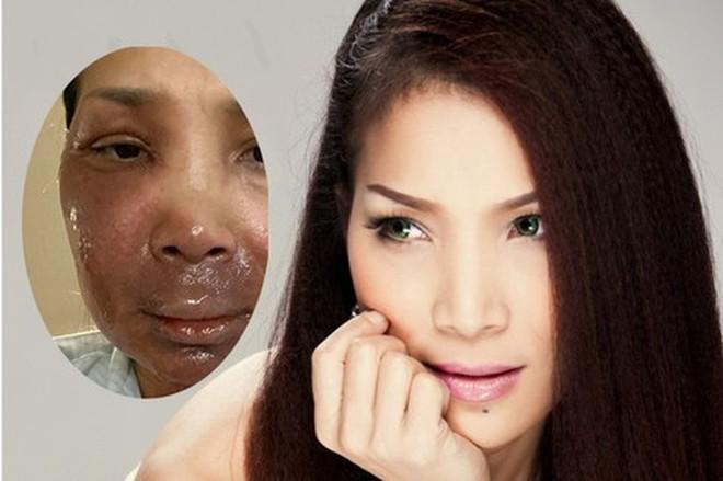 Bức ảnh chụp cận khuôn mặt bị biến dạng sau vụ bỏng được Hồng Ngọc chia sẻ 2 tuần sau khi vụ tai nạn xảy ra