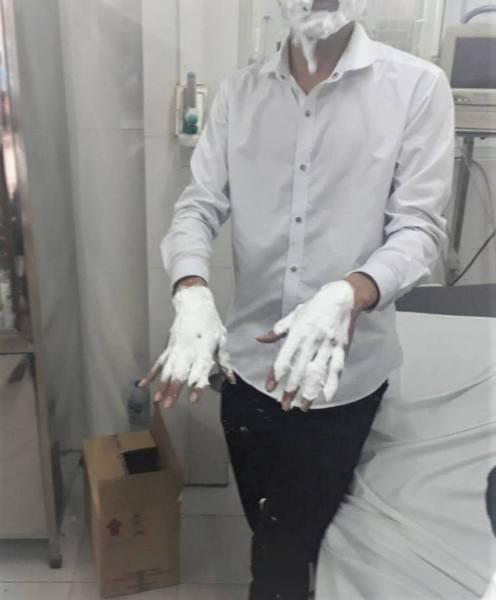 Các nạn nhân đã được sơ cứu, xử lý vết bỏng kịp thời để hạn chế tổn thương