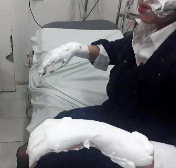 Một sinh viên bị bỏng nặng ở 2 tay và vùng mặt