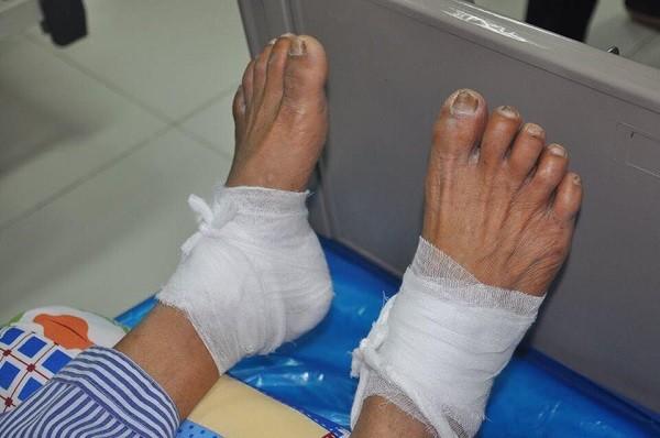 Bệnh nhân T. bị bỏng độ 3 ở 2 gót chân, có nguy cơ hoại tử