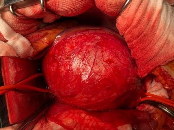 Động mạch chủ bụng của bệnh phình to như cái bát, đường kính xấp xỉ 10cm