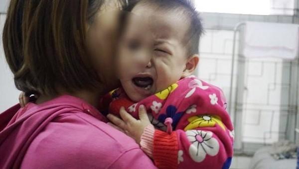 Trời lạnh khiến nhiều trẻ bị méo miệng vì liệt dây thần kinh ngoại biên số 7