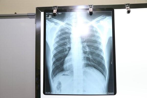 Kết quả chụp Xquang cho thấy bệnh nhân có phủ tạng nằm đảo ngược hoàn toàn so với bình thường