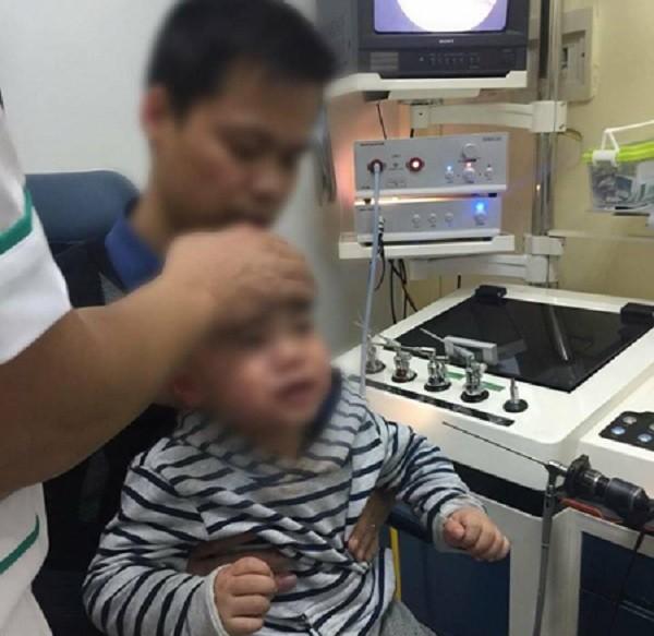 Trẻ bị hóc dị vật nguy hiểm nhưng may mắn được đưa đến viện cấp cứu kịp thời