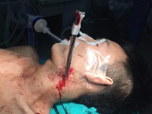 Bệnh nhân được đưa vào viện cấp cứu trong tình trạng bị thanh sắt cắm vào cổ