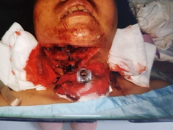 Bệnh nhân nhập viện với vết thương cắt ngang cổ, đứt gần rời vùng gốc lưỡi