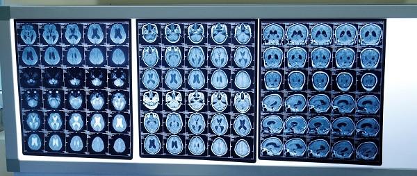 Hình ảnh chiếu chụp khối u não của bệnh nhân H.