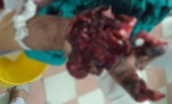 Bệnh nhân N.H.Đ.D nhập viện với bàn tay nát bươm do tai nạn pháo nổ