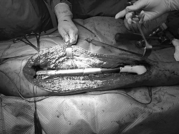 Các bác sĩ thay toàn bộ xương đùi của bệnh nhân H. bằng xương kim loại