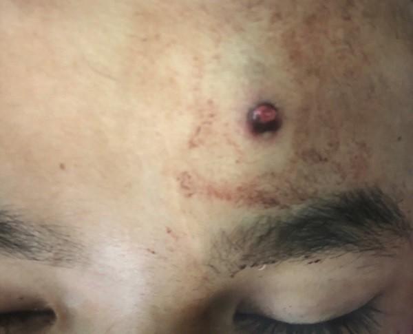 Nam thanh niên nhập viện với vết thương do đạn bắn xuyên não từ trán lên đỉnh chẩm