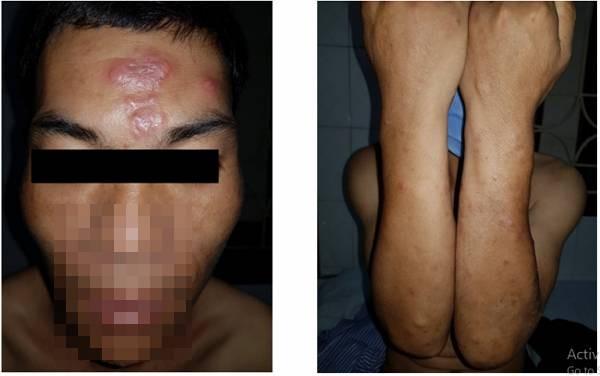 Nam thanh niên mắc bệnh phong nhưng không có các triệu chứng điển hình