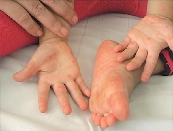 Nhiều địa phương đang có số bệnh nhi mắc tay chân miệng gia tăng