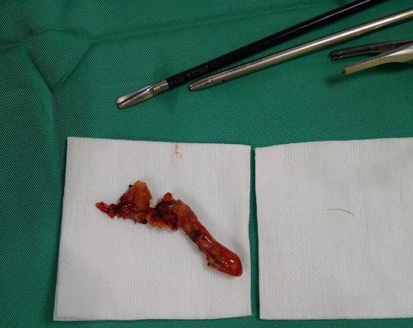 Đoạn ruột thừa bị viêm nhiễm, áp xe sau khi được bác sĩ cắt, lấy ra