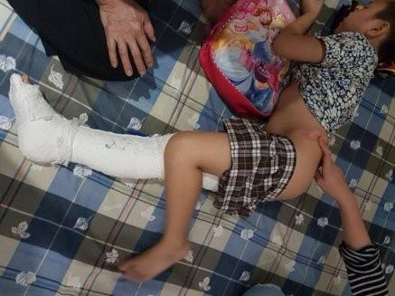 Học sinh trường Tiểu học Nam Trung Yên bị gãy chân