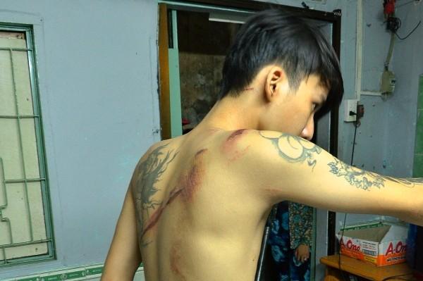 Nhiều vết chém trên lưng, đầu...