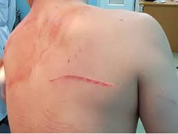 Những vết thương trên người bác sĩ Chiêm Quốc Thái.