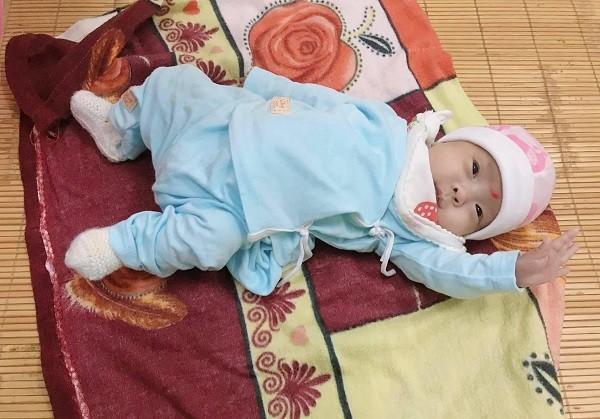 Kỳ tích: Cứu sống bé sinh non khi mới 26 tuần và nhẹ cân nhất từ trước đến nay ảnh 2