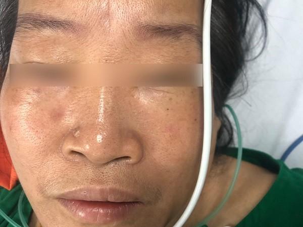 Bị ong lạ đốt, nữ bệnh nhân ở Hà Nội nhồi máu cơ tim cấp, ngừng tuần hoàn ảnh 1