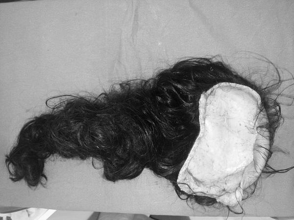 Bé gái 8 tuổi bị lột hoàn toàn da đầu, lộ cả xương sọ do tóc cuốn vào xe 3 bánh ảnh 1