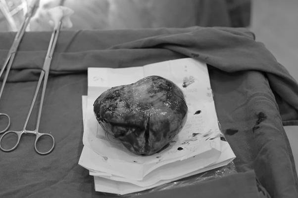 """Mang khối u buồng trứng siêu lớn, người phụ nữ 36 tuổi ở Hà Nội hoãn phẫu thuật để """"vượt cạn"""" ảnh 2"""
