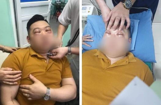 Nam thanh niên bị sốc phản vệ nặng chỉ vì thái một củ hành ảnh 1