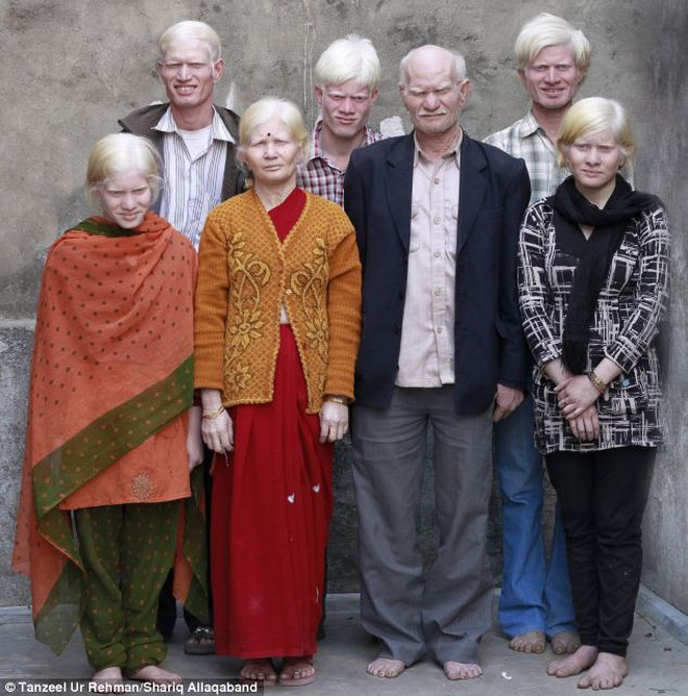 Kỷ lục 10 người mắc bệnh bạch tạng trong một gia đình. ảnh 1