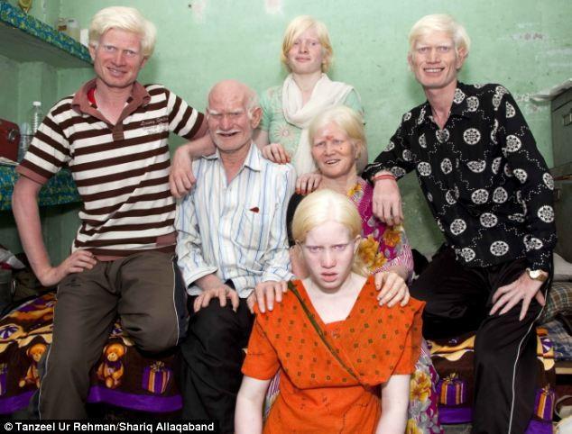Kỷ lục 10 người mắc bệnh bạch tạng trong một gia đình. ảnh 2