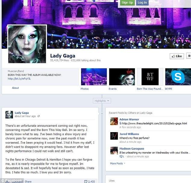"""Lady Gaga """"gặp hạn"""" đầu năm mới ảnh 1"""