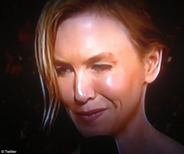 Nghi án Renee Zellweger lạm dụng botox ảnh 3