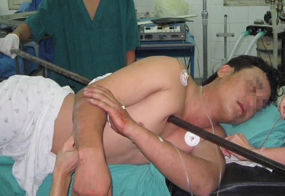 Rợn người với tai nạn lao động ảnh 1