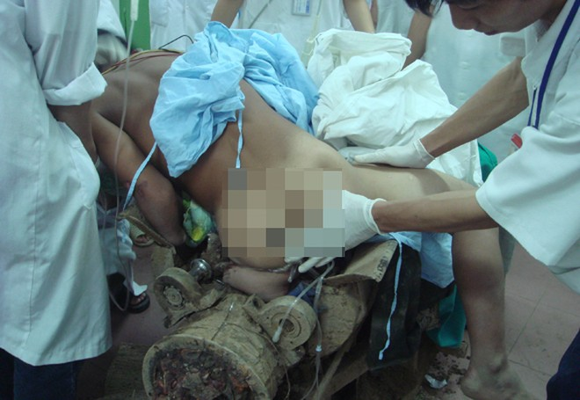 Rợn người với tai nạn lao động ảnh 2