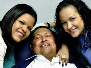 """""""Tổng thống Hugo Chavez đã bị liệt nửa người"""" ảnh 1"""