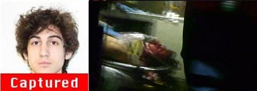 Nghi phạm đánh bom thứ 2 bị thẩm vấn ngay, dù trọng thương ảnh 1
