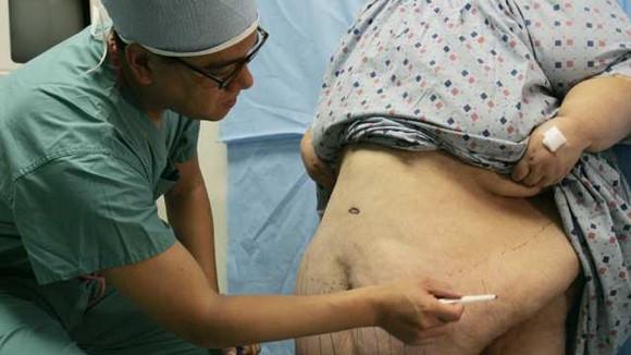 Điều trị bệnh tiểu đường: Tự bỏ đói ảnh 1