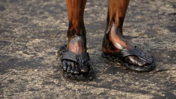 Đôi chân đầy dầu của một công nhân trong vụ tràn dầu vào bờ biển tỉnh Liêu Đông tháng 5-2010