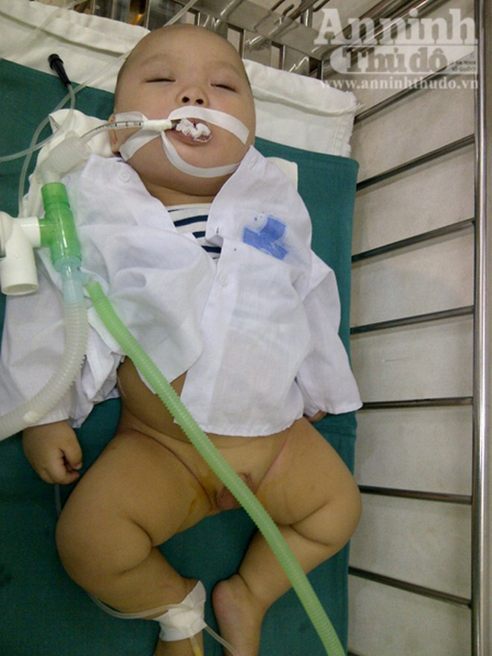 Phẫu thuật thành công cho bé 9 tháng tuổi bị xương đâm thủng ruột ảnh 1