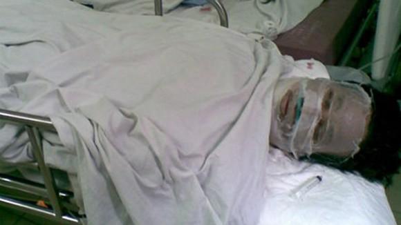 Hải Phòng: Tẩm xăng thiêu sống 2 con, bố cũng tử vong ảnh 1