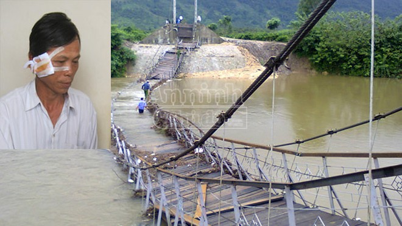 Đắk Lắk: Sập cầu treo, một người dân bị thương ảnh 1