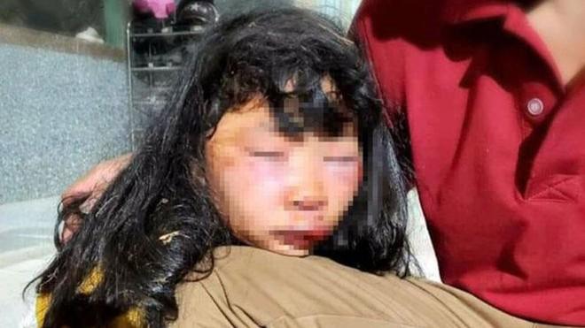[Tin nhanh sáng 19-3-2021] Nữ sinh lớp 6 bị đánh dã man, bất tỉnh trong lô cao su ảnh 1
