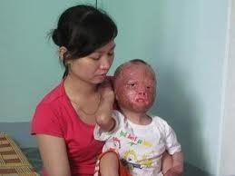 Chị Lê Thị Hà cùng đứa con bị đốt đến dị dạng.