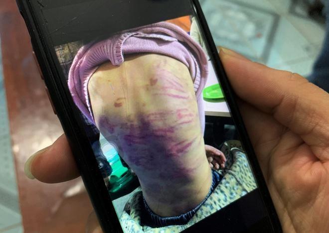 [Tin nhanh sáng 21-2-2021] Khẩn trương xác minh vụ bạo hành trẻ em ở quận Hà Đông ảnh 2