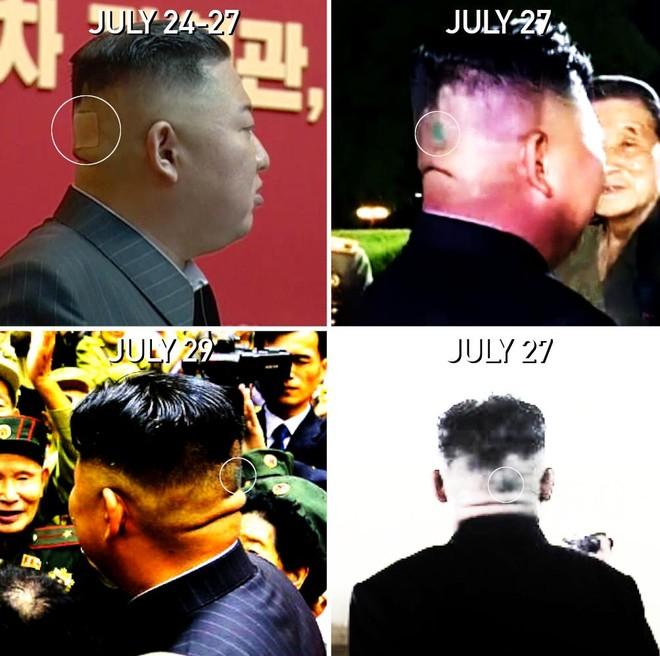 Tình báo Hàn Quốc: Sức khoẻ Chủ tịch Triều Tiên bình thường ảnh 1