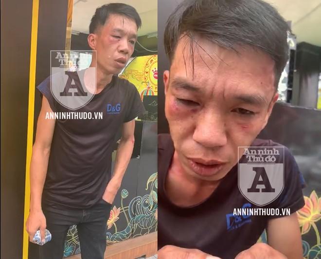 [CLIP] Cảnh sát 141 bắt tên cướp manh động ảnh 1