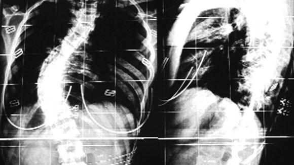 Cong vẹo cột sống tuổi học đường: Hại từ trong ra ngoài ảnh 1