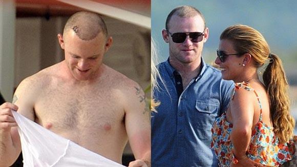 Thuốc mọc tóc khiến Rooney tăng ham muốn tình dục?