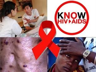 2011 - bước ngoặt cho ứng phó toàn cầu với AIDS